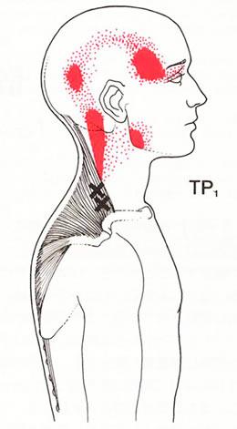 トリガーポイントは頭痛・首こり・肩こり・不定愁訴の原因