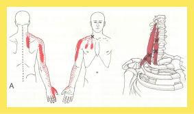 [クチコミ]頚椎ヘルニア、首痛、手のしびれが改善した(^^)