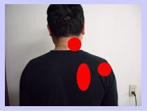 [くちこみ]福岡中央区整体で頸椎ヘルニア・首痛が改善(^^)