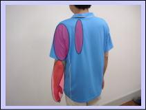 【頚部脊柱管狭窄症】・・・・福岡市城南区神松寺の女性の患者さま