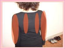 頚椎ヘルニア・腕のしびれ・疼痛・・・福岡市中央区唐人町の患者さま/草香江整体