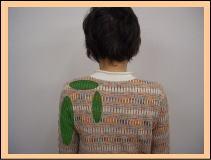 頸椎ヘルニア・頸椎症性神経根症・・・福岡市城南区茶山の患者さま