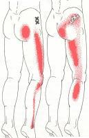腰痛・坐骨神経痛・椎間板ヘルニアの症例・・・福岡市城南区七隈の女性患者さま/六本松評判の人気整体