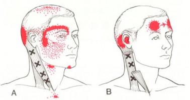 【首痛・頭痛・肩こりの整体ブログ】・・・福岡市中央区唐人町の患者さま/六本松の整体