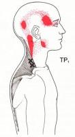 【肩こり・頭痛、首痛の整体ブログ】・・・・福岡市城南区茶山の患者さま/六本松の整体