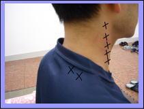 【頚椎ヘルニア・首痛・肩こりの整体ブログ】・・・・福岡市中央区唐人町の患者さま/六本松の整体