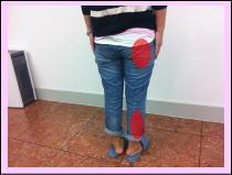【坐骨神経痛・腰痛の整体ブログ】・・・福岡市中央区草香江の患者さま