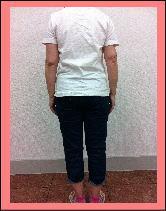 【腰痛・椎間板ヘルニア-福岡‐整体】・・・福岡市中央区大濠の患者さま/草香江整体