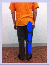 【腰痛・椎間板ヘルニア】・・・福岡市中央区草香江の患者さま