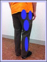 【腰痛・椎間板ヘルニア】・・・福岡市中央区、城南区、早良区の整体
