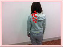 【首こり・頚椎椎間板ヘルニア・頸椎狭窄症】・・・福岡市中央区草香江の首の整体
