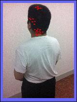 【片頭痛・偏頭痛・首こり・肩こり】・・・福岡市中央区六本松の整体院/福岡中央区整体
