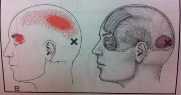 【頭痛・片頭痛・自律神経失調症】・・・福岡市中央区の六本松整体