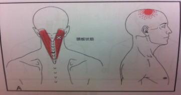 【頭痛・自律神経失調症】・・・六本松整体