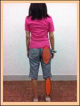 【椎間板ヘルニア・腰痛・坐骨神経痛】・・・福岡市中央区鳥飼の女性患者さま/六本松の人気口コミ整体