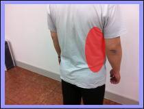肋間神経痛の症例、腋の下が痛い、肋骨に響く。
