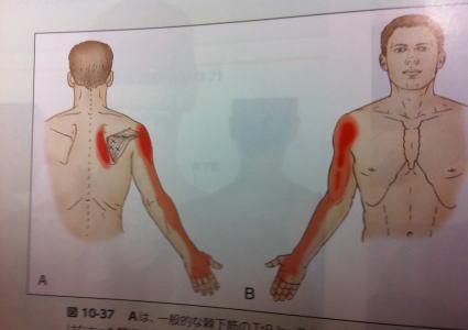 【頚椎椎間板ヘルニア-福岡市整体】・・・方、腕、手がしびれる/福岡中央区整体