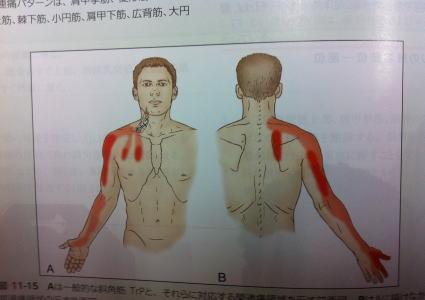 【頚椎ヘルニア、痺れ】・・・福岡市城南区・中央区・福岡市早良区・六本松の福岡整体