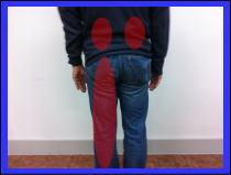 腰痛、坐骨神経痛の患者様/福岡市中央区六本松の女性に口コミで人気の整体院