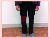 膝の痛み/福岡市中央区六本松の整体院