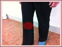 患者さまの評判・・・「膝の痛みがなくなりました!おすすめの整体です。」