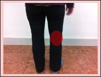 患者さまの評判・・・「膝の痛みに効きました!」