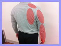 【頚椎ヘルニア、脊柱管狭窄症】・腕の痺れ、福岡市中央区白金の女性、坐骨神経痛の福岡整体