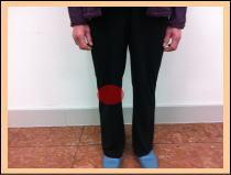 【膝の痛み、半月板損傷】・・・福岡市中央区草香江の整体院