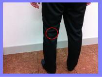 【膝の裏が痛い-福岡市-整体】・・・福岡市中央区六本松のクチコミ人気の整体院
