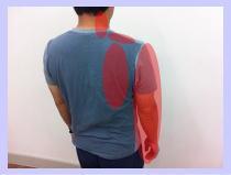 【頚椎ヘルニア、首痛、首こり、福岡整体】首、背中、腕の痛みと痺れ/福岡市城南区長尾の女性