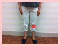 膝が痛い、膝痛・・・福岡市中央区六本松の整体院