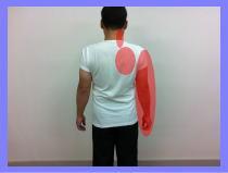 福岡市城南区別府の腰痛の福岡整体・・・頚椎ヘルニア、腕の痺れ、腰痛、首痛。