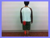 腰痛、坐骨神経痛・・・福岡市中央区赤坂の患者さん/福岡整体