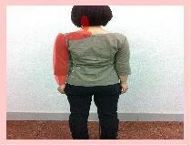 【頚椎ヘルニア、しびれ】・・・福岡市早良区百道浜の患者さん/福岡市中央区草香江の整体