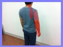 福岡市早良区西新の患者さん・・・頚椎ヘルニア、首・肩の痺れ/福岡市中央区草香江整体