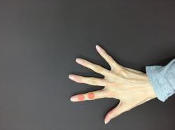 福岡市中央区、城南区の整体、頭痛、首こり、坐骨神経痛、へバーデン結節、ブシャール結節、母指CM関節症