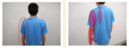 頚椎狭窄症の痺れは城南区茶山の女性患者さま。福岡市中央区六本松の頚椎ヘルニアの整体/福岡中央区整体。