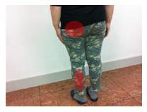 福岡市中央区大手門の坐骨神経痛、腰痛、足の痺れの女性。